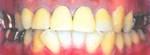 矯正前の歯1